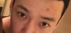 崔振赫曬入伍短髮照:額頭上有個痘痘?