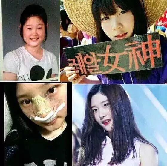 勇氣可嘉! 盤點那些承認整容的韓國女藝人