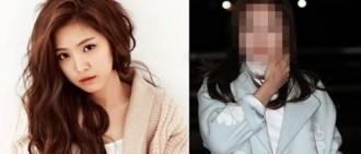 網民指最近的照片顯示A Pink Son Naeun注射了了botox