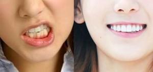 12位偶像的牙齒相片可能會讓你感到抖不過氣